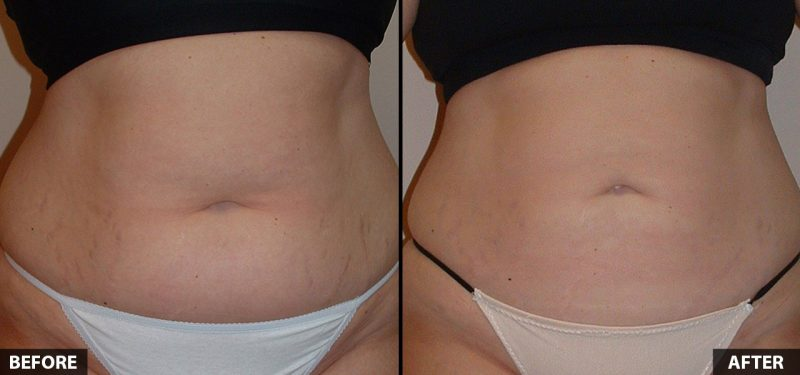 abdominal-liposuction-16065