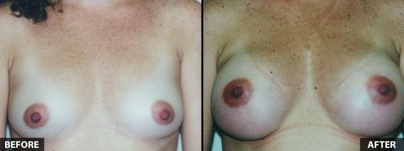 breast-augmentation-13055