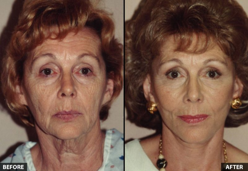 facelift-female-unknown