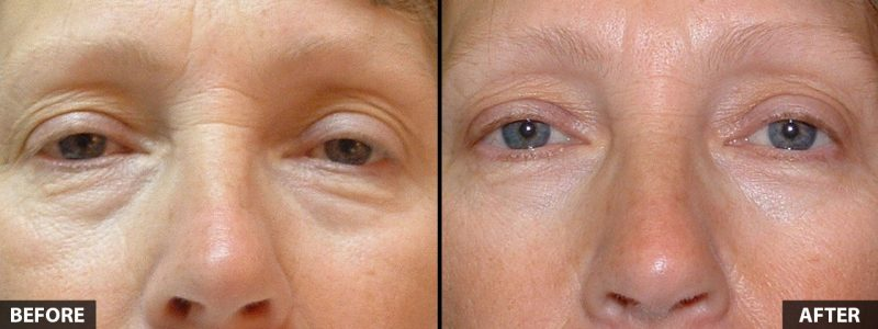 lower-eyelid-lift-16185