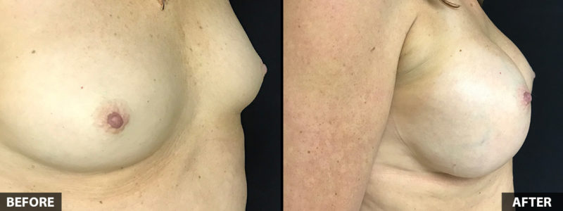 breast-augmentation-side-52yo-female-2019